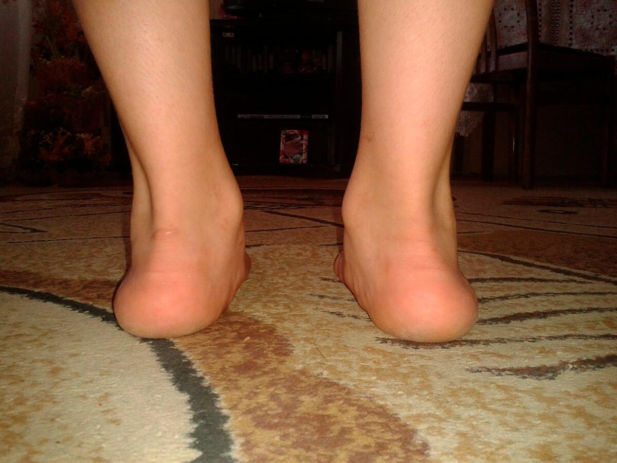 Массаж при Х-образной деформации ног
