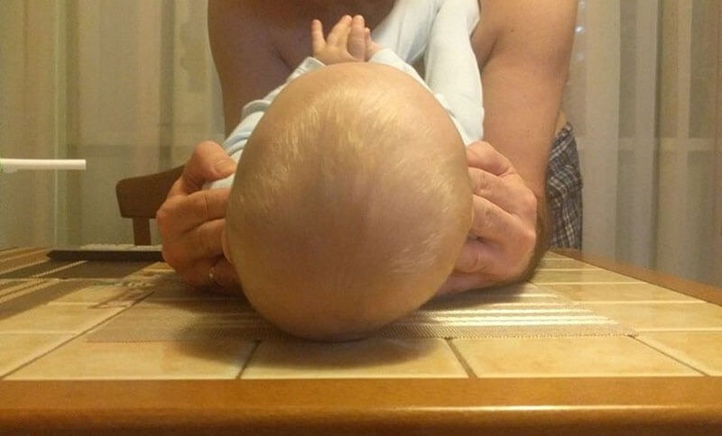 Как исправить скошенный затылок у ребенка грудничка?